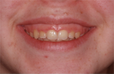 Before esthetic crown lengthening