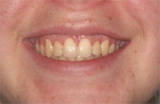 After image of esthetic crown lengthening