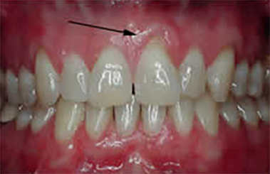 front tooth before treatment