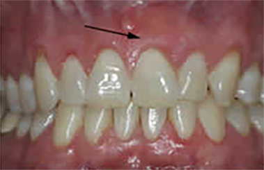 front tooth after treatment